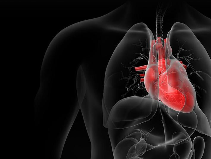 A revolutionary cardiac regeneration treatment following severe myocardial infarction
